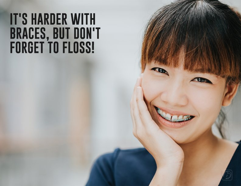 It's harder with braces, but don't forget to floss