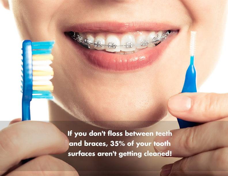 If you don't floss between teeth and braces, 35% of your tooth surfaces aren't getting cleaned